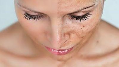 Riscuri mari pentru persoanele cu pielea sensibilă la soare
