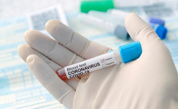 35 de cazuri noi de infectare Covid și două decese, în Galați « viata-libera.ro