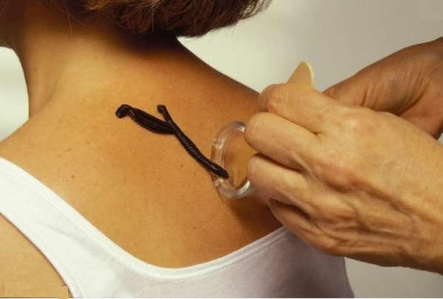 Avantajele și dezavantajele hirudoterapiei pentru varice - Complicaţiile - April